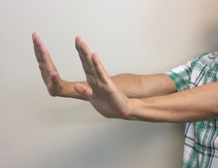 To test for asterixis, the arms are extended and the wrists dorsiflexed. The presence of asterixis is defined as a tremor of the hand with arm extended and wrist held back (dorsiflexed); tremor of hands and extended failure to hold hands in this position.<div>Source: photograph by David H. Spach, MD</div>
