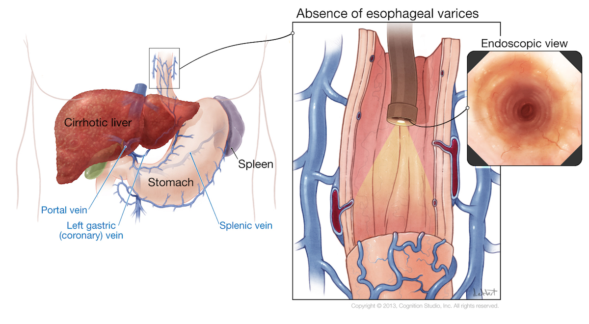 The left side of the illustration shows a patient with moderately advanced cirrhosis. The inset shows an internal longitudinal view of the esophagus, with absence of esophageal varices. The far right inset shows the esophageal view as seen from the operator of the endoscope.<div>Illustration by David W. Ehlert, CMI, MAMS. Cognition Studio</div>