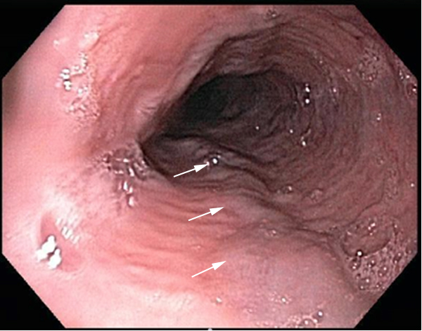 Endoscopic view of the esophagus, looking down into the esophageal lumen.  The white arrows indicate the presence of small esophageal varices.<div>Photograph courtesy of Dr. Iris Liou, University of Washington.</div>