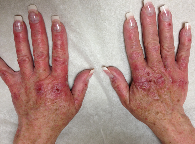 Pruritic rash on hands of patient that started 2 weeks into treatment with simeprevir plus sofosbuvir. The photograph is taken 10 weeks into treatment. The rash only manifested in sun exposed areas.<div>This photograph is courtesy of Dr. John D. Scott, MD.</div>