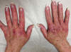 Pruritic rash on hands of patient that started 2 weeks into treatment with simeprevir plus sofosbuvir. The photograph is taken 10 weeks into treatment. The rash only manifested in sun exposed areas.