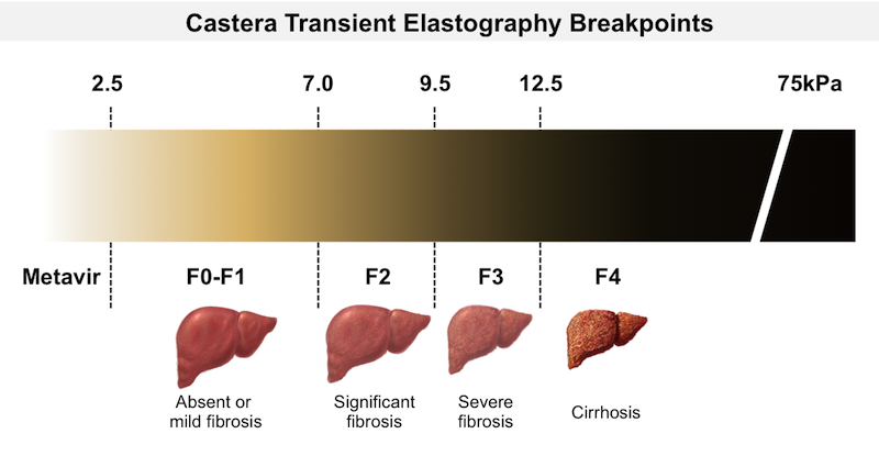<div>Source: Castera L, Vergniol J, Foucher J, et al. Prospective comparison of transient elastography, Fibrotest, APRI, and liver biopsy for the assessment of fibrosis in chronic hepatitis C. Gastroenterology. 2005;128:343-50.</div>