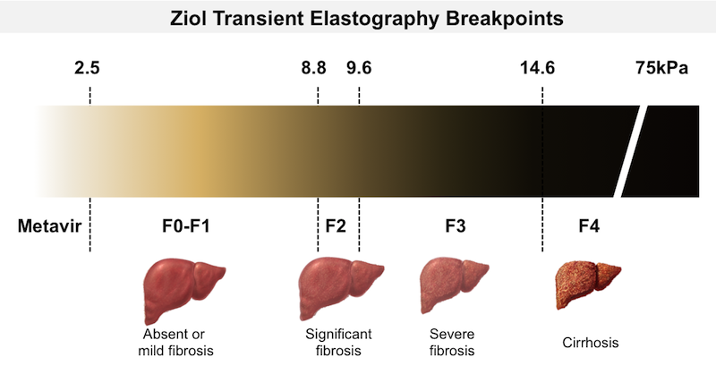 <div>Source: Ziol M, Handra-Luca A, Kettaneh A, et al. Noninvasive assessment of liver fibrosis by measurement of stiffness in patients with chronic hepatitis C. Hepatology. 2005;41:48-54.</div>