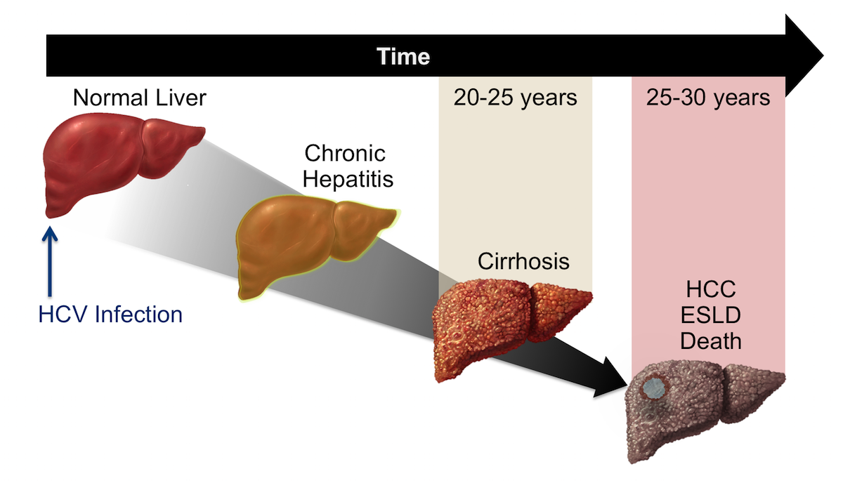 This graphic shows the time course for the natural history of chronic hepatitis C infection. Following initial HCV infection, there is typically a lag of 20 to 25 years before cirrhosis develops.<div>Illustration: David H. Spach, MD</div>