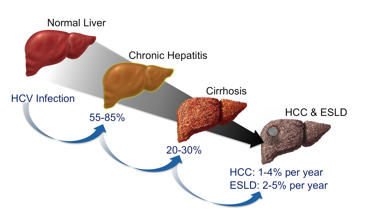 Following initial infection with HCV, approximately 55 to 85% of persons develop chronic infection.  Among those with chronic infection, approximately 20 to 30% will eventually develop cirrhosis.  Patients who have HCV-related cirrhosis have a 2 to 7% per year risk of developing either end-stage liver disease or hepatocellular carcinoma.