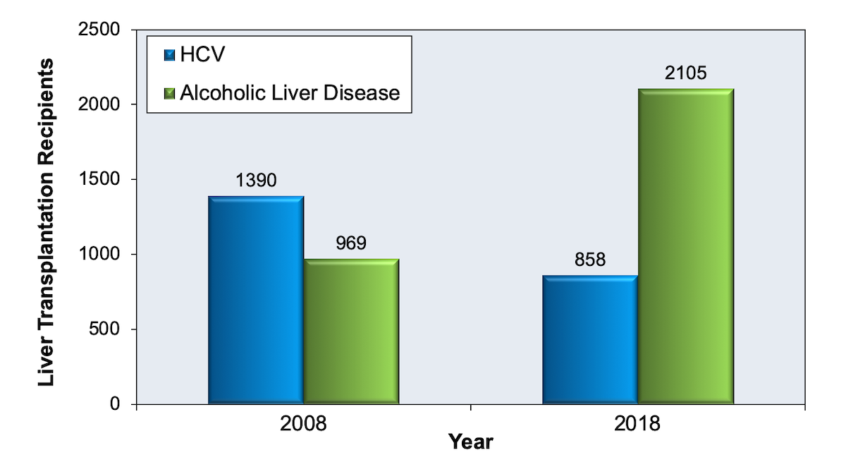 This graphic compares chronic HCV and alcoholic liver disease as the indication for liver transplantation in persons receiving a liver transplantation in 2008 versus those in 2018.<div>Source: Kwong A, Kim WR, Lake JR, et al. OPTN/SRTR 2018 Annual Data Report: Liver. Am J Transplant. 2020;20 Suppl s1:193-299.</div>