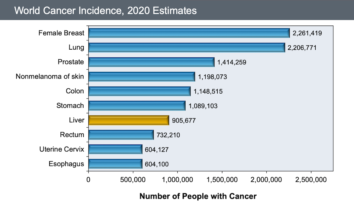 This graphic shows the global incidence of the most common cancers in in 2008. Overall, an estimated 12.7 million new cancers occurred globally in the year 2008. Approximately 750,000 persons had a diagnosis of HCC in 2008.<div>Source: International Agency for Research on Cancer. World Cancer Fact Sheet. August, 2010.</div>